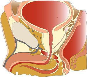 hemospermia
